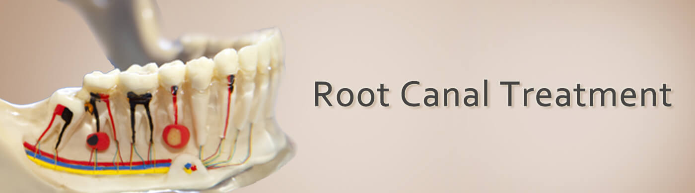 root canal treatment in bandra